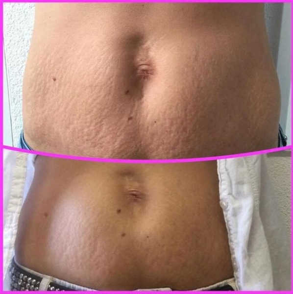 Bye Bye Cellulite Cream Removal Jana from Sweden Before and after