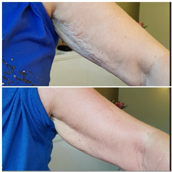 Bye Bye Cellulite Cream Removal Ms. Petersen from USA