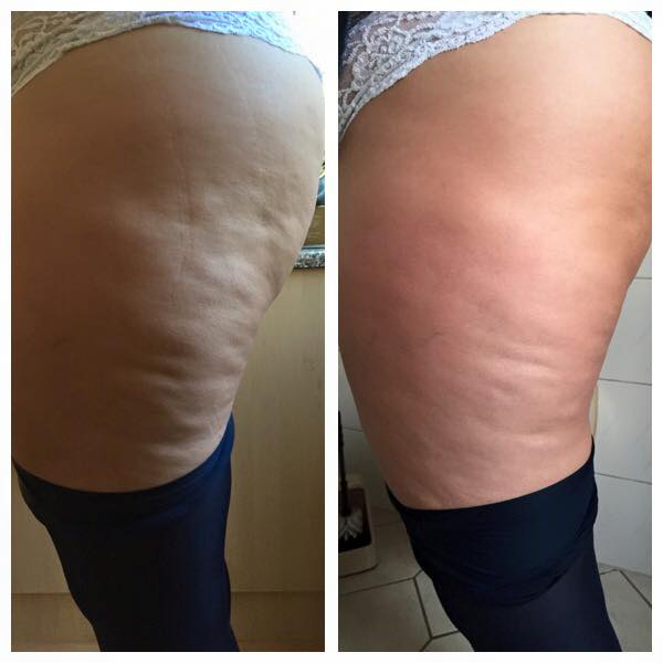 How to Use ByeByeCellulite Cream To Get Rid Of Cellulite 3