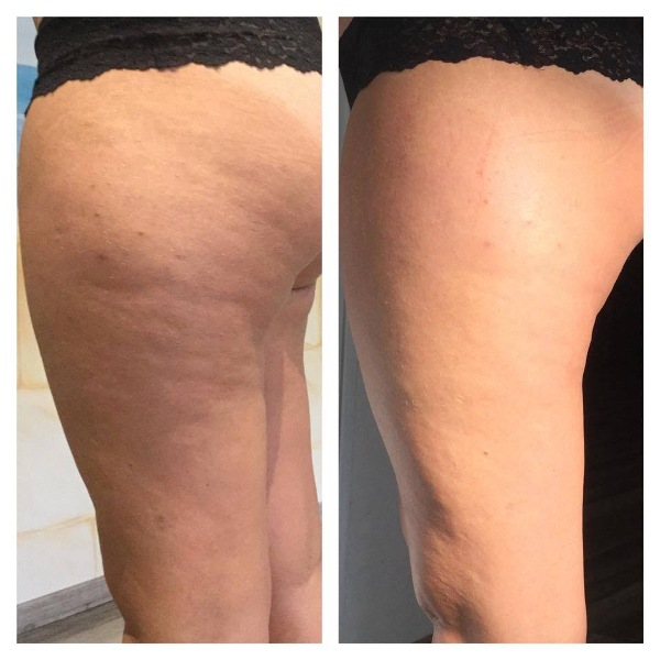 Cellulite cream removal befor and after London
